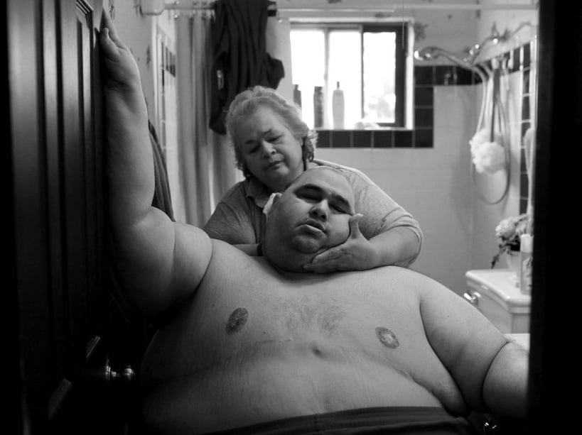 A Life Apart: The Toll of Obesity