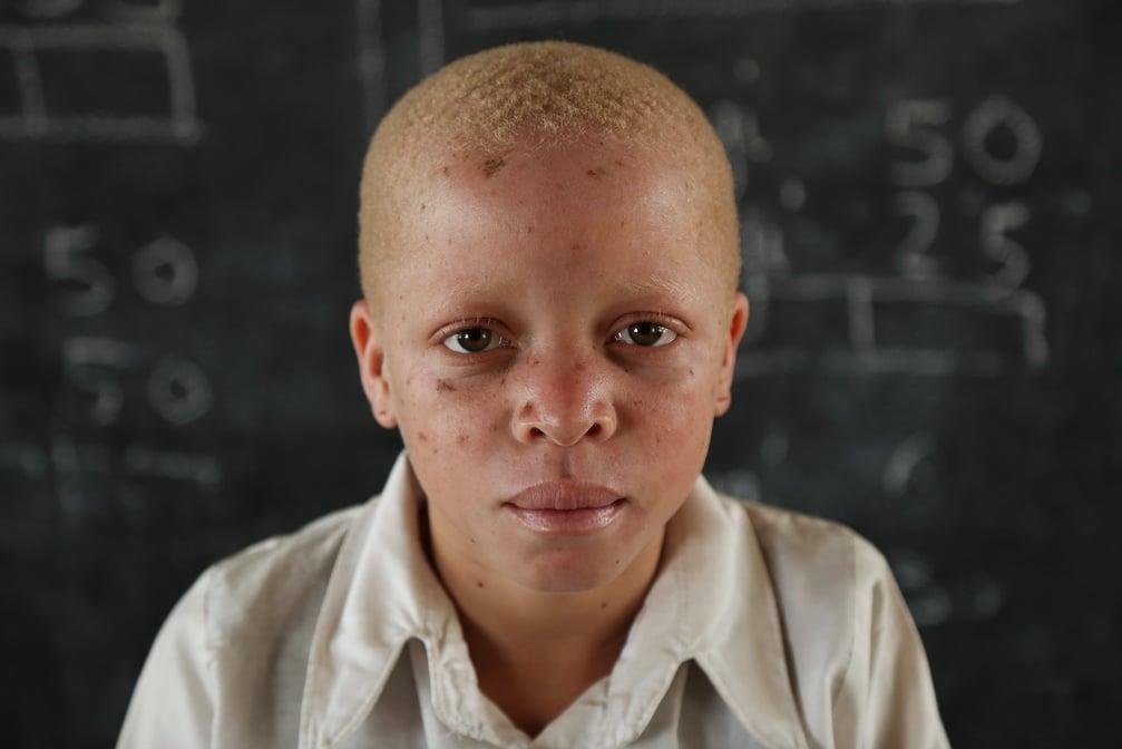 Bibiana, une enfant albinos  à Musoma en Tanzanie - ©Flickr