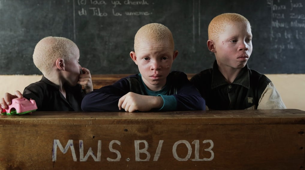 Albinos, vers la fin d'un massacre?